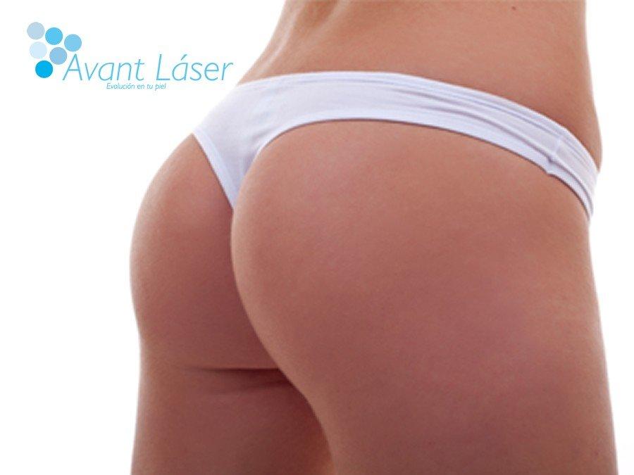 Depilación láser :: Áreas :: Bikini Brasileño