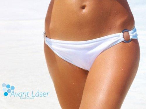 Depilación láser :: Áreas :: Bikini