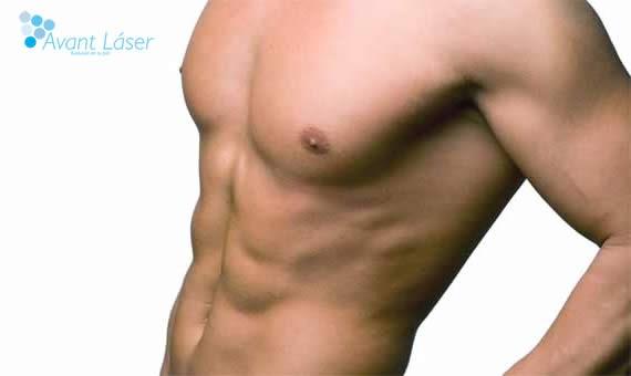 Depilación Láser :: Paquetes Hombres :: II :: Hombros, Espalda y 1/2 Brazos